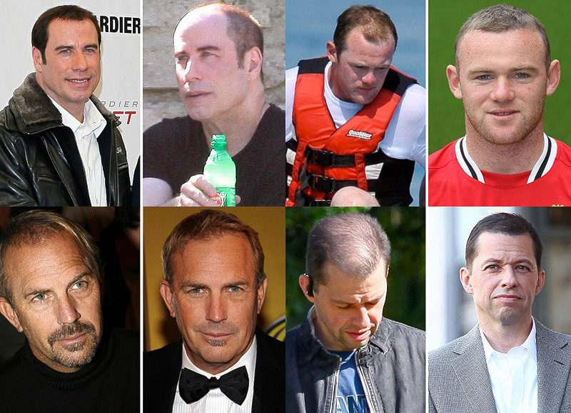 Знаменитые мужчины и их волосы
