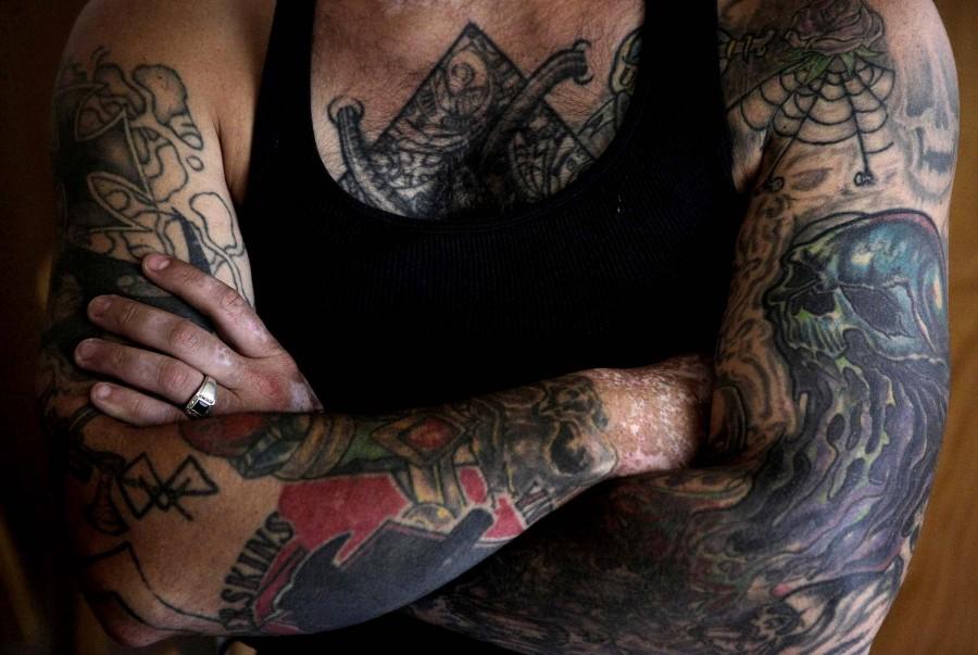1202 Бывший скинхед удаляет татуировки