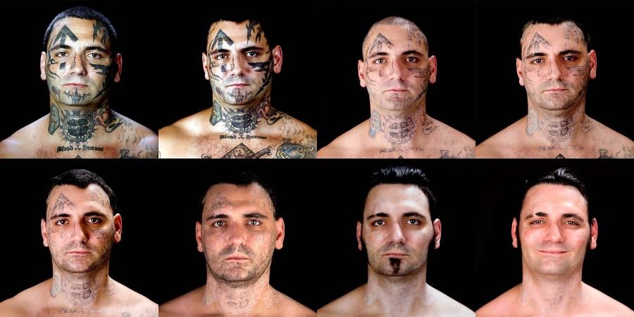1456 Бывший скинхед удаляет татуировки