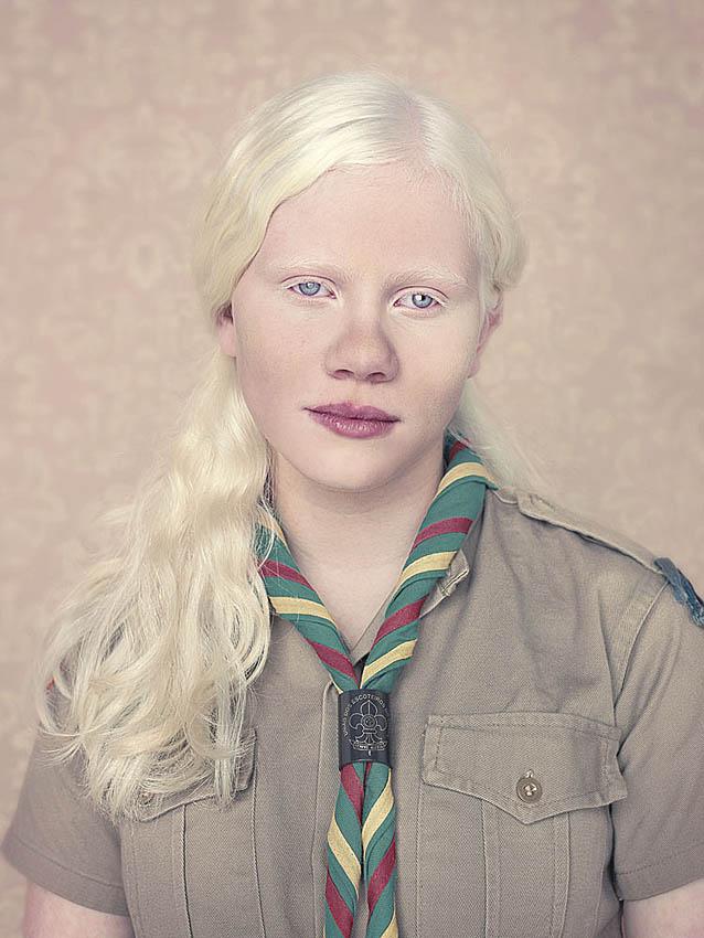 0220 альбиносы белее белого