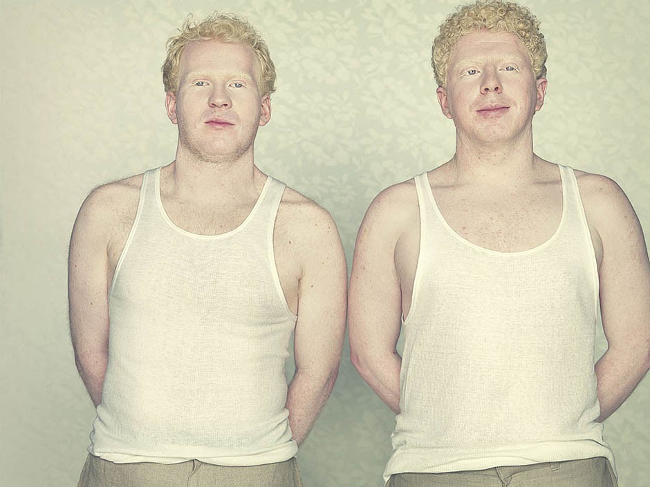 Кто из знаменитостей альбинизм