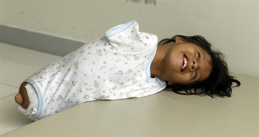 2201 Жизнерадостная девочка инвалид из Перу