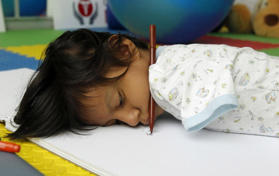 Img327561449 Жизнерадостная девочка инвалид из Перу