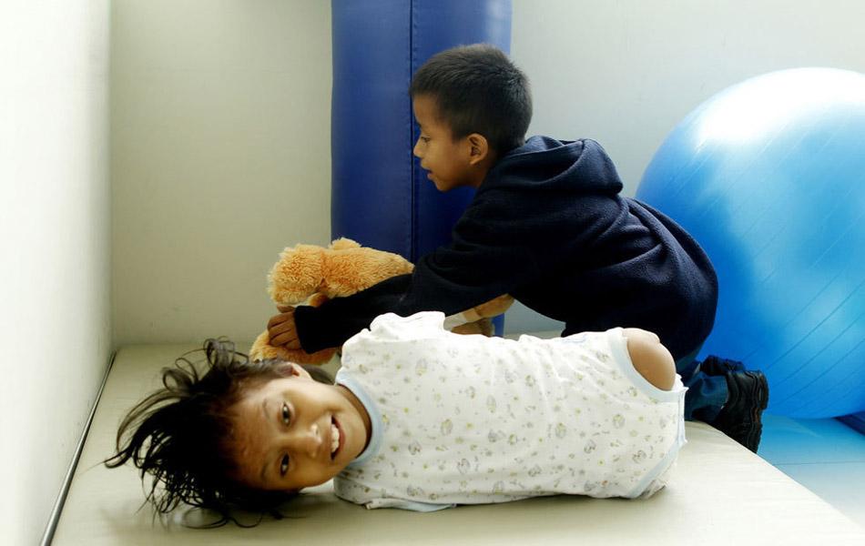 Img327561450 Жизнерадостная девочка инвалид из Перу
