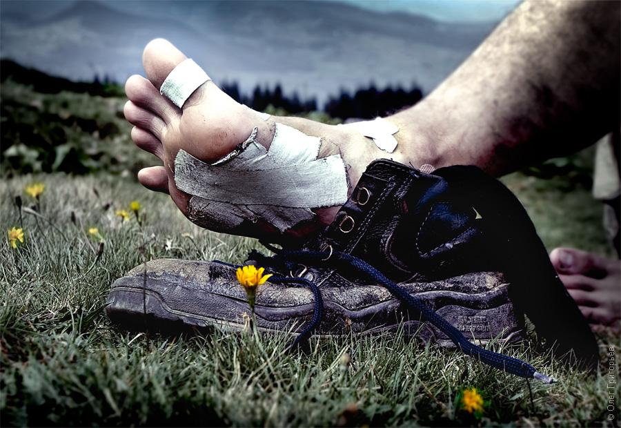 Лечение рожистого воспаления ноги форум