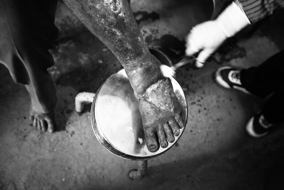 deathfor50rupees031 Наркомания в Индии: смерть по 50 рупий