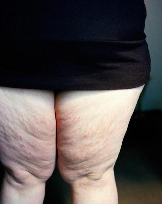 020 Фотограф Джен Дэвис: История человека, запертого в своем теле