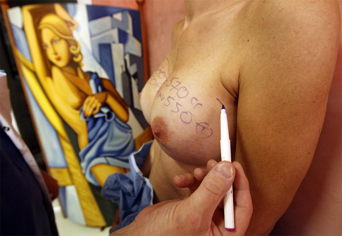 270 Операция по замене некачественных грудных имплантантов PIP
