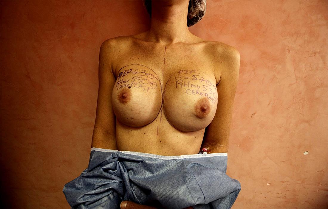 340 Операция по замене некачественных грудных имплантантов PIP