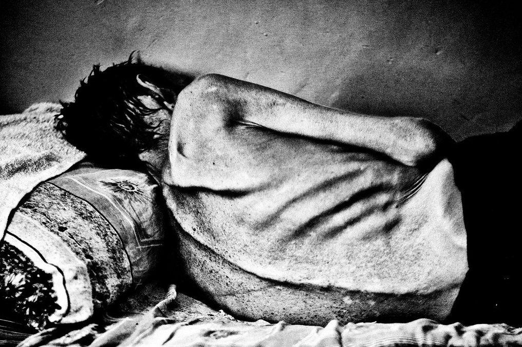 497 Туберкулез на постсоветском пространстве