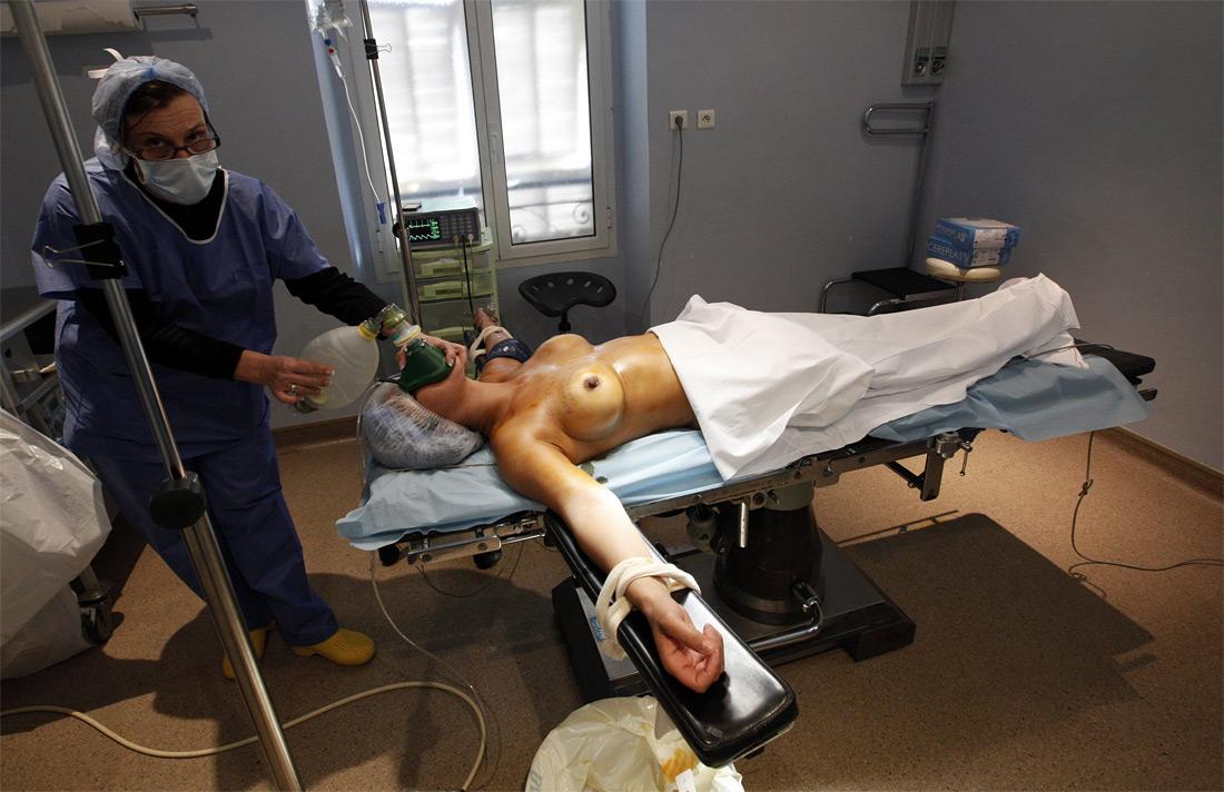 524 Операция по замене некачественных грудных имплантантов PIP