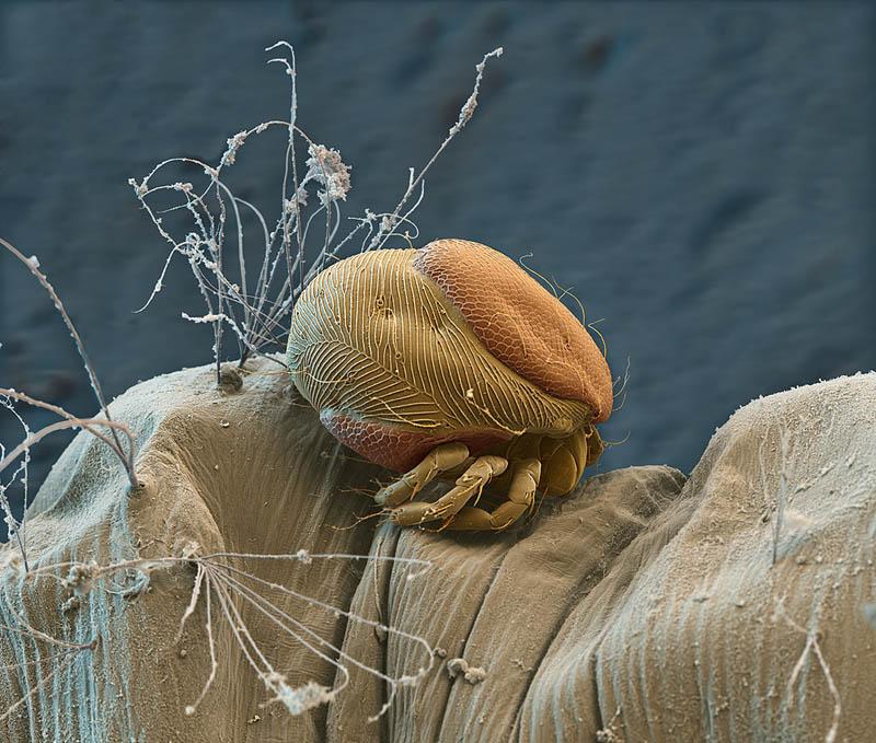659 Фотографии, сделанные с помощью электронного микроскопа