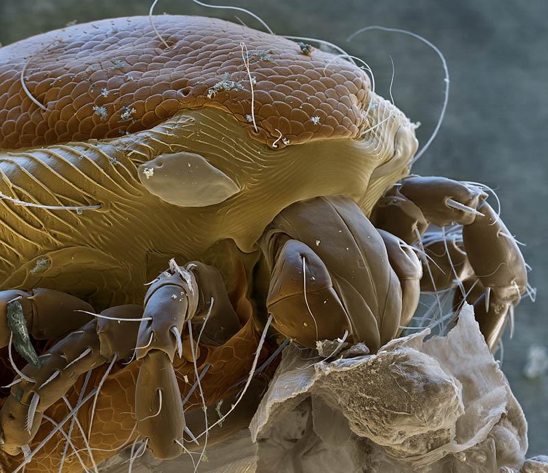 какие на коже живут микробы фото можете выбрать любую