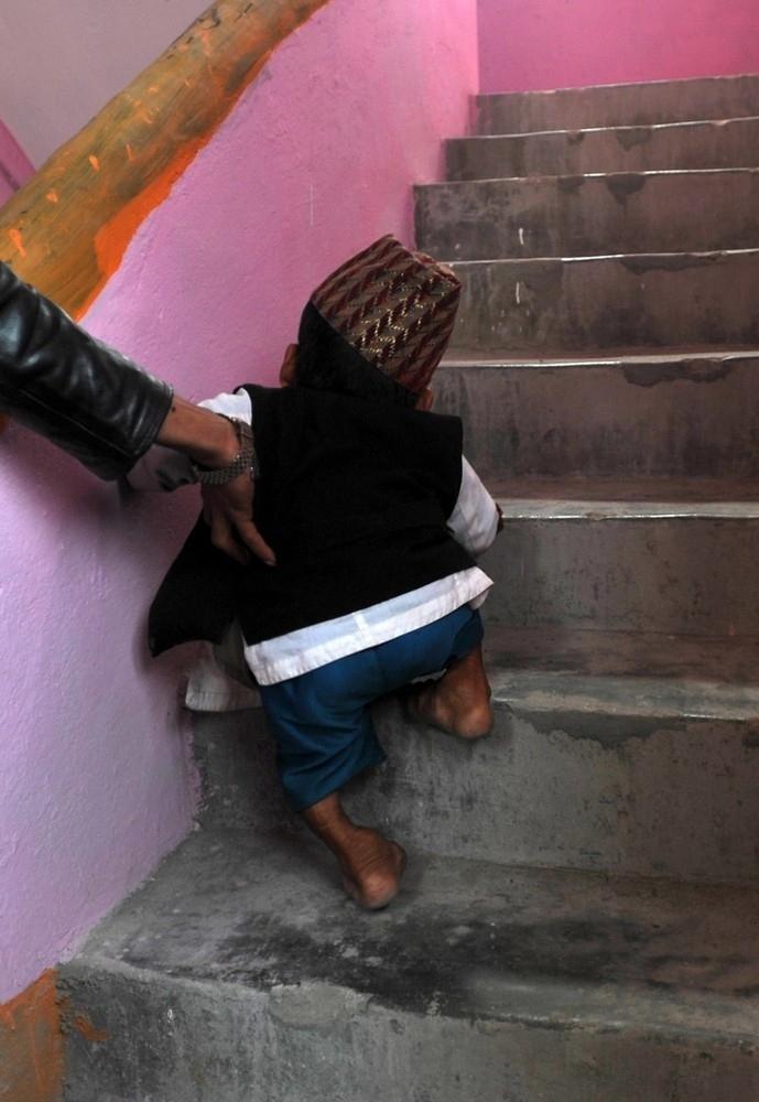 enhancer Самый маленький человек найден в непальской деревне