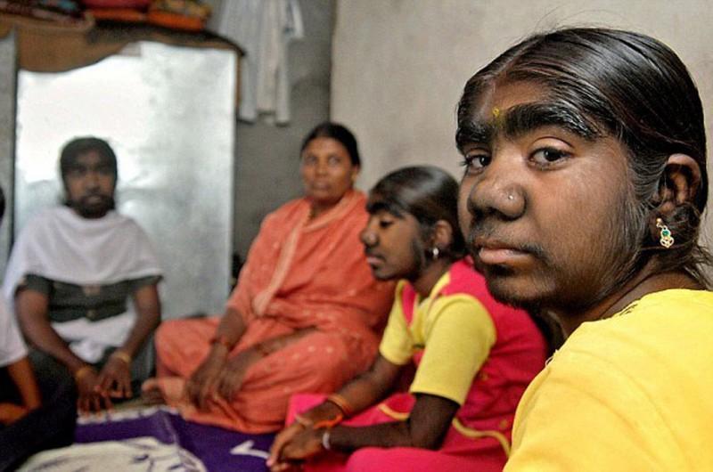 Волосатая болезнь в индии