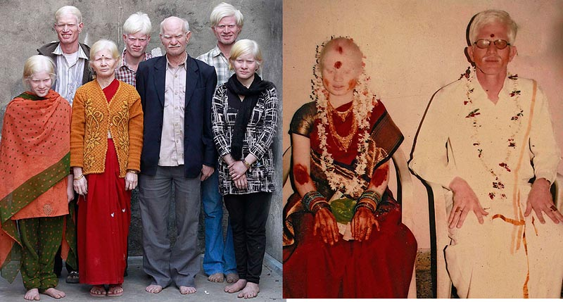 BIGPIC10 Самая большая семья альбиносов