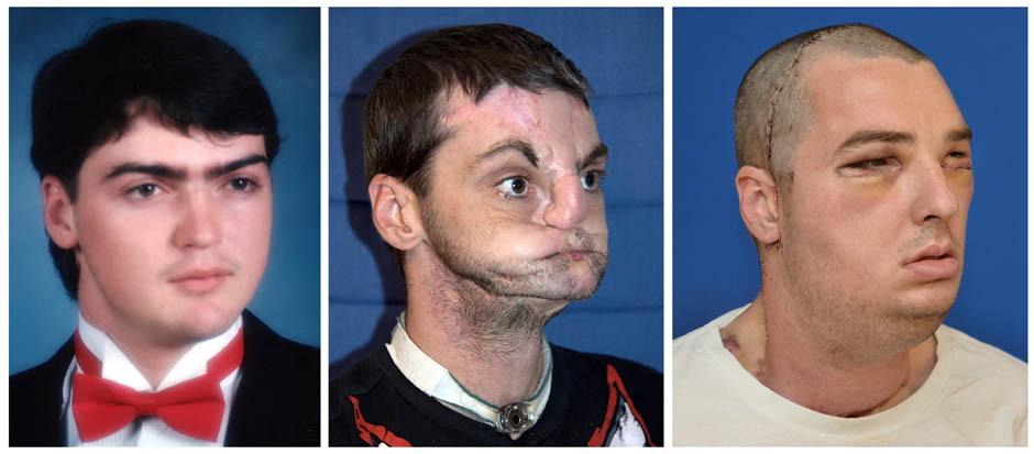 jeffisgr8t 1140042 Американцу отреставрировали лицо