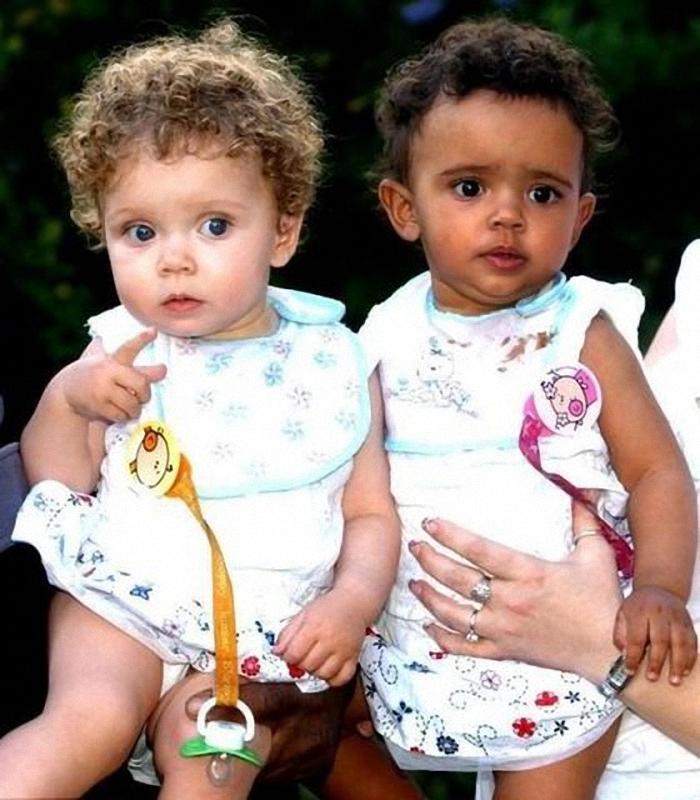 0026 Черно белые близнецы