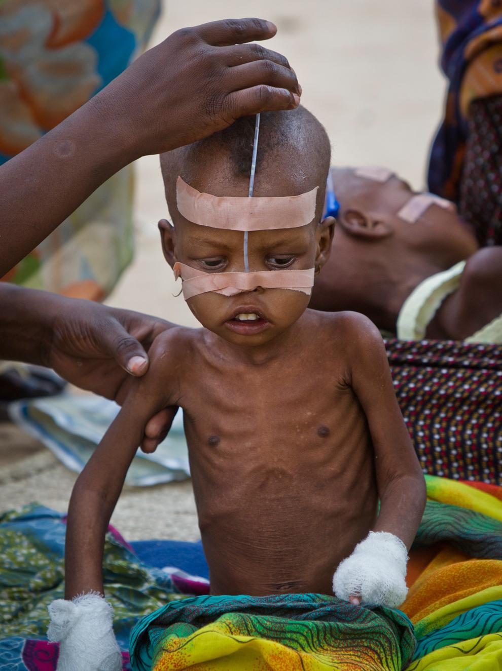 bp13 Продовольственный кризис в природной зоне Сахель в Африке