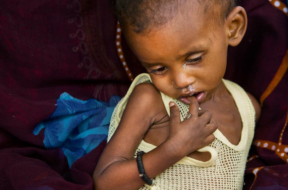 bp17 Продовольственный кризис в природной зоне Сахель в Африке
