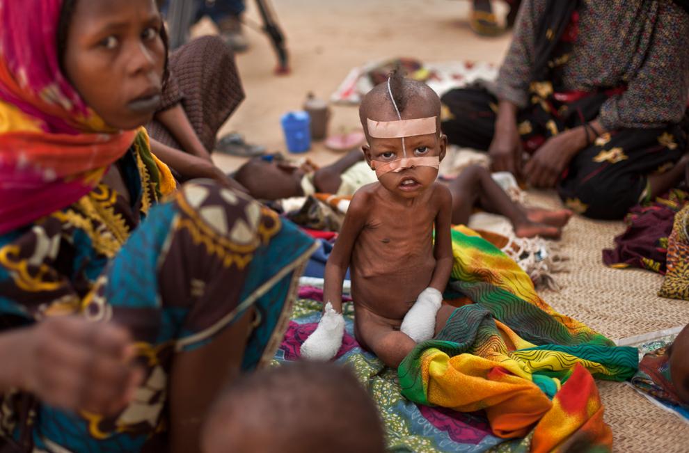 bp7 Продовольственный кризис в природной зоне Сахель в Африке