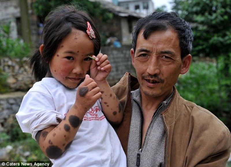00pbhtr2 В Китае родители отказались от ребенка оборотня