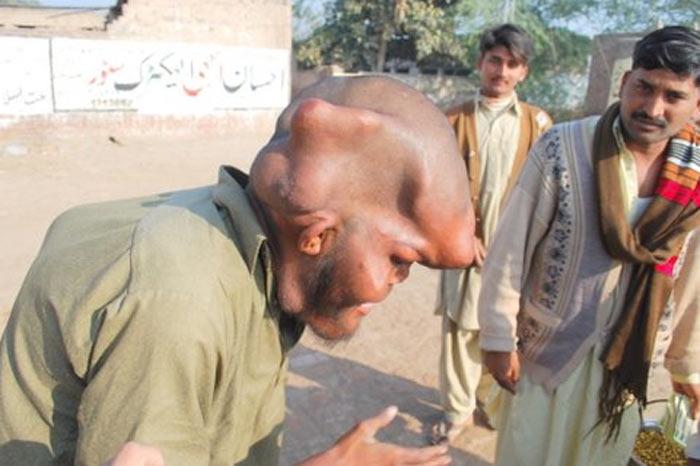 118297 fil adam 5 Человек слон из Пакистана