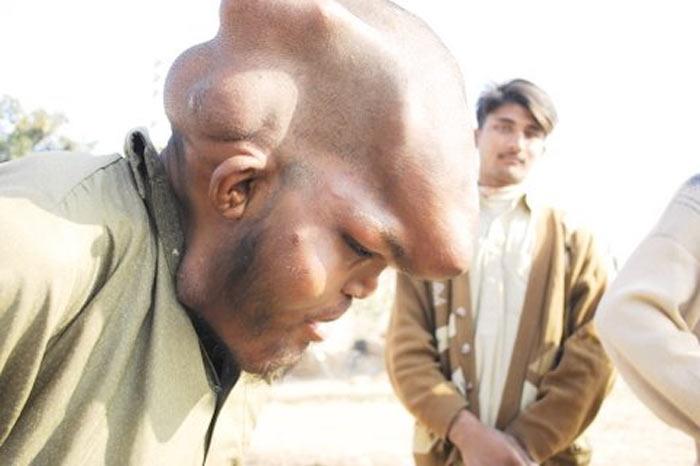 118298 fil adam 6 Человек слон из Пакистана