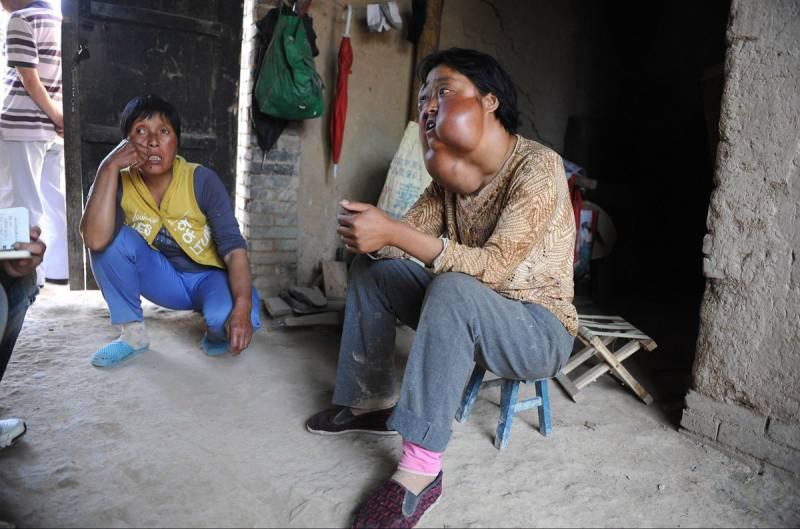 13395575 Болезнь обезобразила несчастную китаянку
