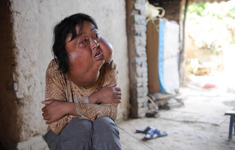 13395576 Болезнь обезобразила несчастную китаянку