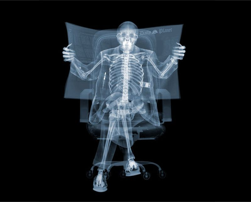 5Сидящий человек Рентгеновский взгляд на мир Ника Визи