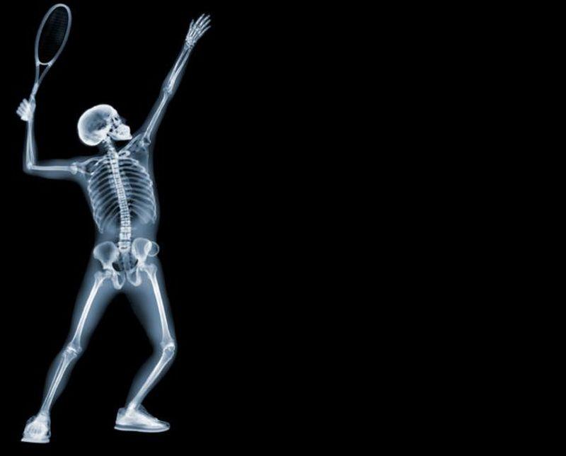 6Теннисист Рентгеновский взгляд на мир Ника Визи