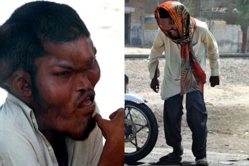 BIGPIC222 Человек слон из Пакистана