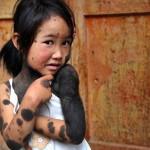 В Китае родители отказались от ребенка-оборотня
