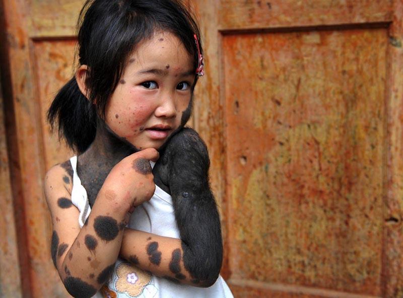 BIGPIC31 В Китае родители отказались от ребенка оборотня