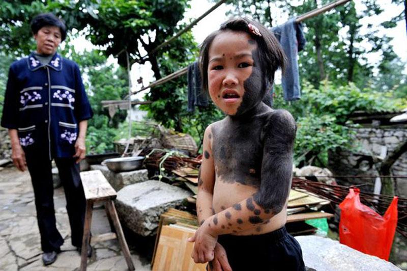 Liu Jiangli 4 efbd2 В Китае родители отказались от ребенка оборотня