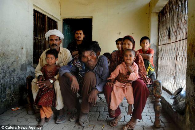 article 2152265 135E9832000005DC 676 634x421 Человек слон из Пакистана