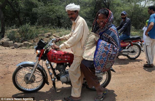 article 2152265 135EA5B1000005DC 360 634x412 Человек слон из Пакистана