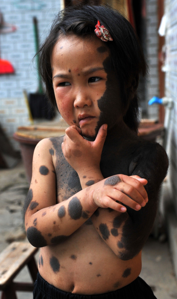slide 231131 1067201 free В Китае родители отказались от ребенка оборотня