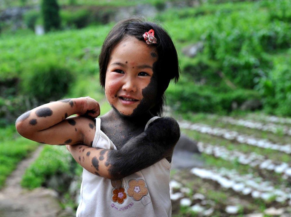 slide 231131 1067203 free В Китае родители отказались от ребенка оборотня