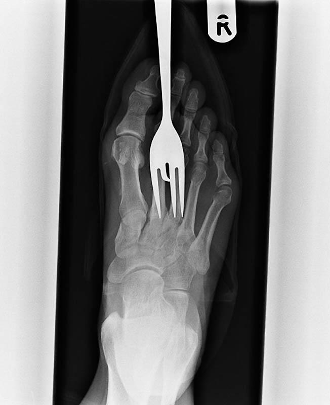 1071 Cамые странные рентгеновские снимки