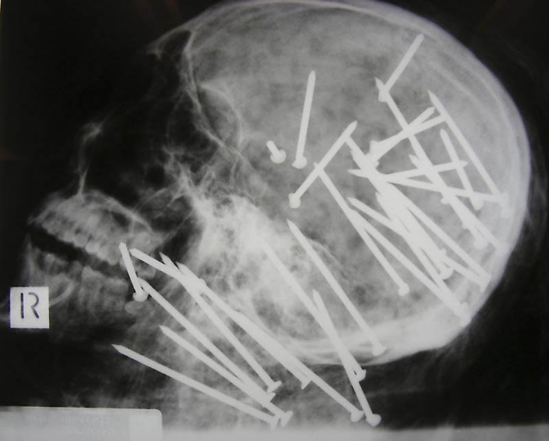 1197 Cамые странные рентгеновские снимки