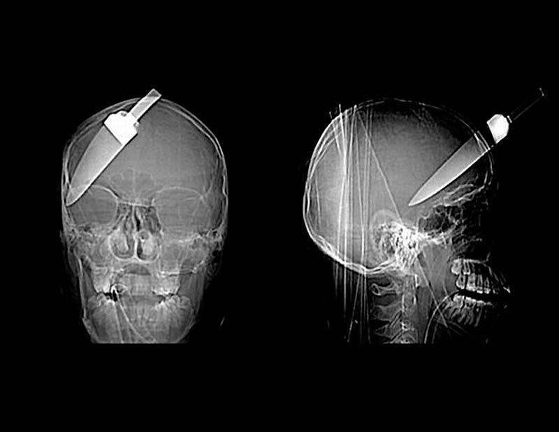 1837 Cамые странные рентгеновские снимки