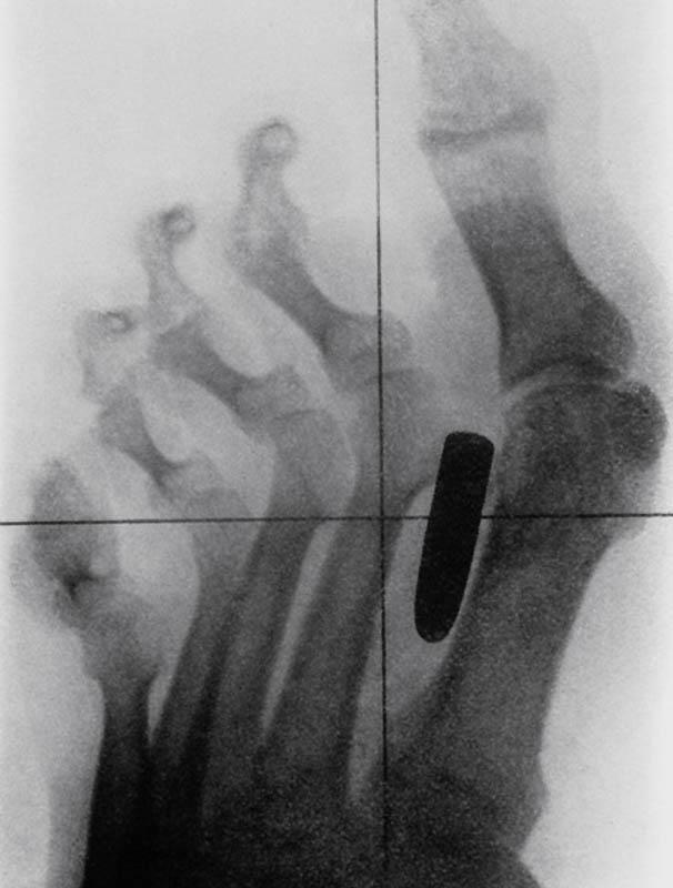 3125 Cамые странные рентгеновские снимки