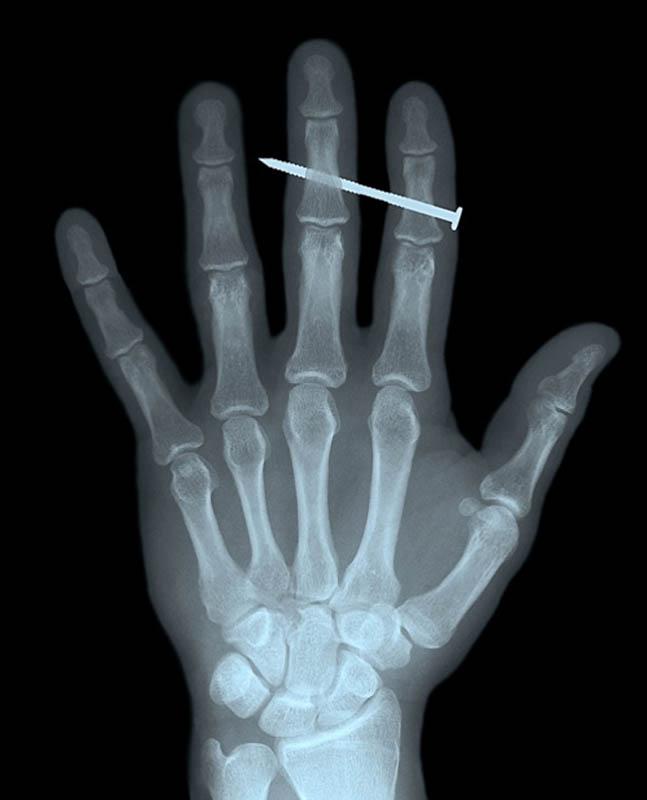 496 Cамые странные рентгеновские снимки