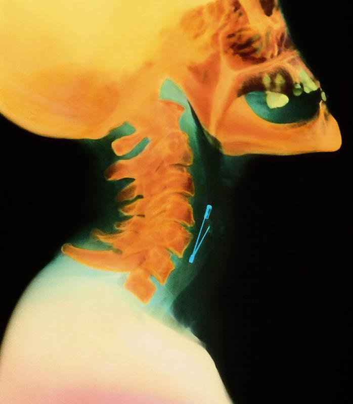 683 Cамые странные рентгеновские снимки
