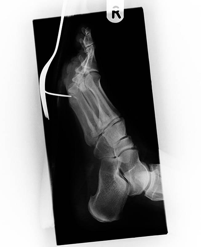 775 Cамые странные рентгеновские снимки