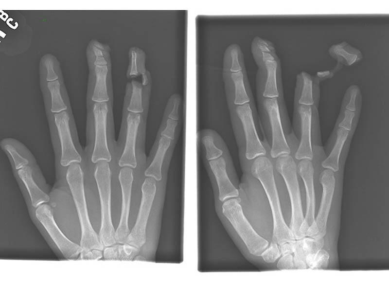 971 Cамые странные рентгеновские снимки