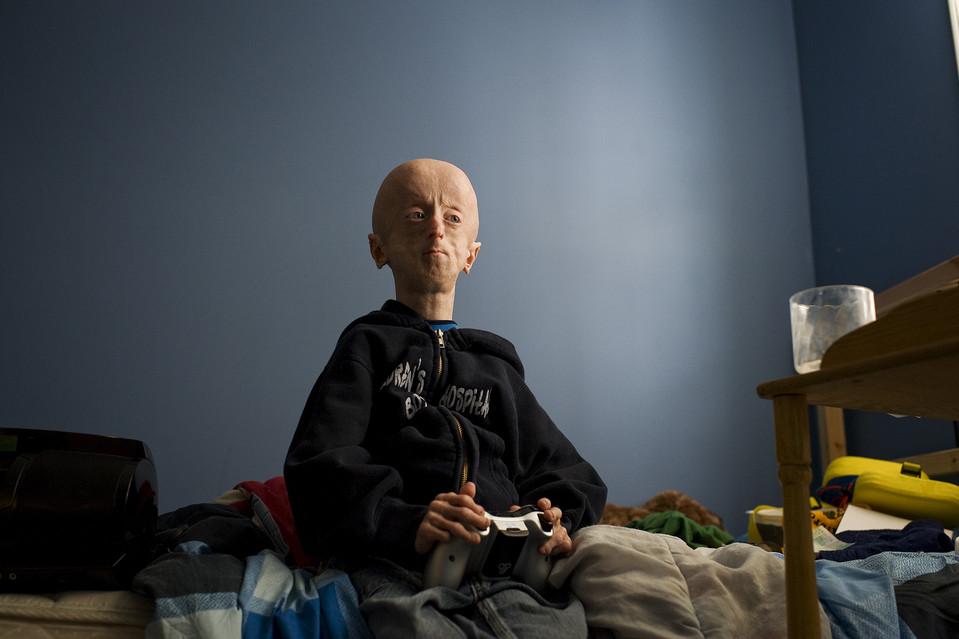 drugshows 2 Надежда на лечение преждевременного старения