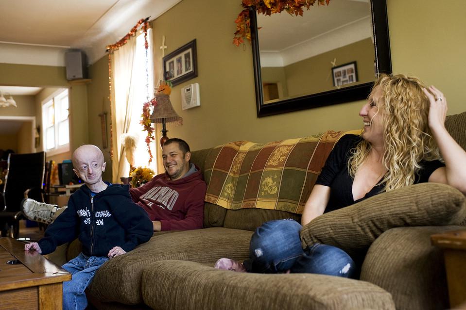 drugshows 7 Надежда на лечение преждевременного старения